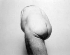 John Coplans  Self Portrait (Back Torso From Below)  1985