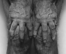 John Coplans, Hands Spread on Knees