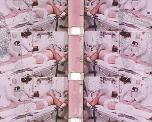 Color slide from 35mm film of repeated image of man in medical setting on a gurney with a bandaged leg and head being attended to by two individuals in white coats