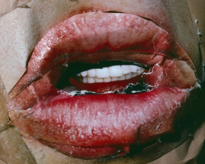 An image of lips with teeth, collaged out of several images of lips and skin.