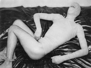 Man in bandages by Benjamin Fredrickson