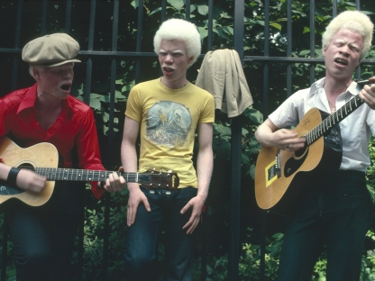 Albino musicians by Arlene Gottfried