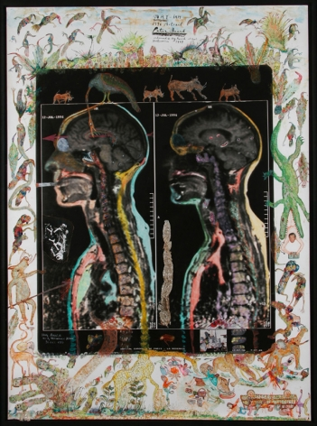 Another Kind of Photography...MRI-IRM, Portrait, Peter Beard, 1996, 1998, 31 5/8 x 23 1/2 Inches, Iris Print, Edition of 25