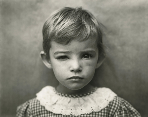 Sally Mann, Damaged Child