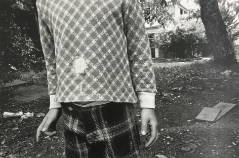 Mark Cohen, Hole in Shirt. 1974