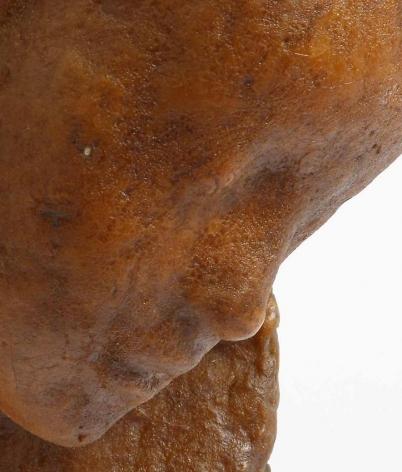 Medardo Rosso Bambino malato[detail]