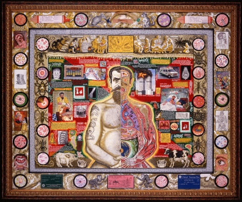 I Am Joe's Fear of Disease, 2001, Acrylic on panel, with the artist's used medical paraphernalia, mounted on the artist's hospital gown