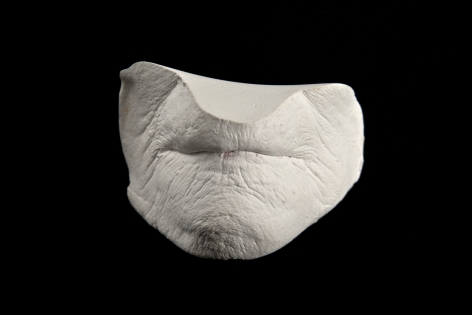 J.J. McCRACKEN Dunlevy Mouth Cast 4 alpha hemihydrate gypsum cement with lipstick residue