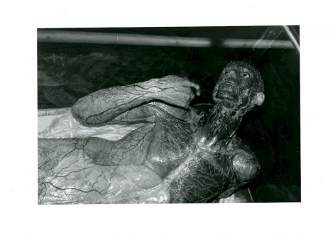 A black and white photograph of a body used for medical studies, depicting the entire nervous system. The form seems to be laying down, with their elbow bent toward their face.