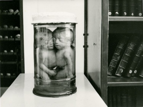 A black-and-white photograph of two fetuses preserved in a jar, sitting on a table in a library