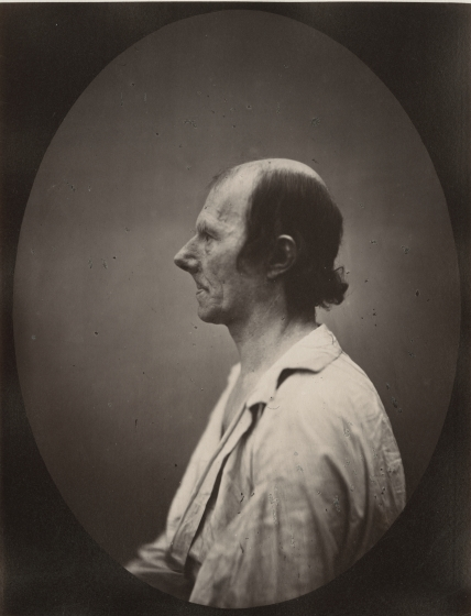 DUCHENNE DE BOULOGNE and Adrien TOURNACHON (French, 1806-1875 & 1825-1903) Portrait of the old man in profile*, 1862, negative, circa 1856 Albumen print from a glass negative