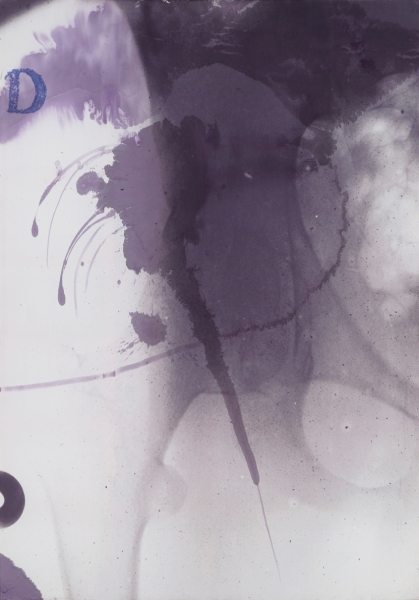 Untitled (X-ray)