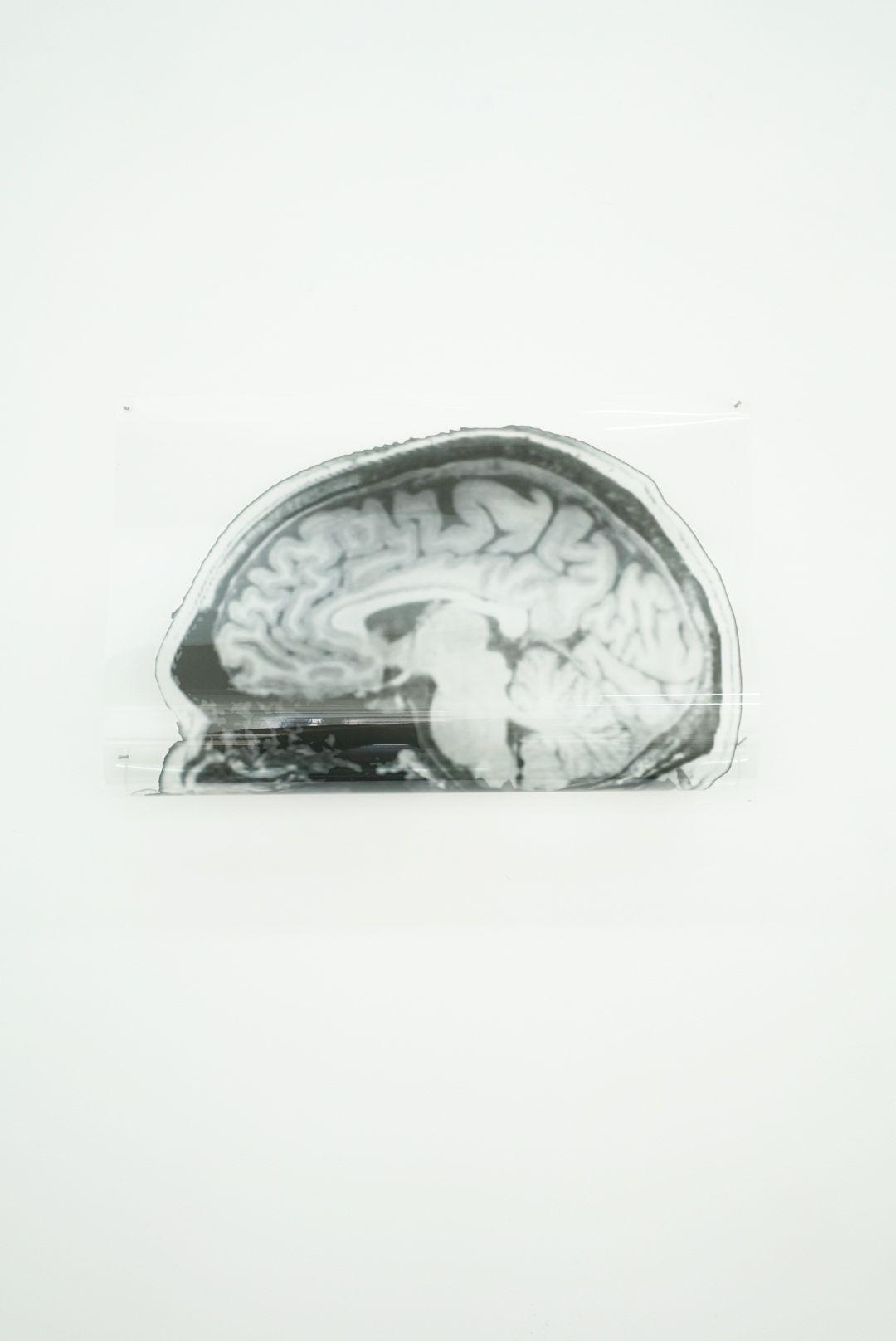 MICHAEL VICKERS | ARTIST PORTRAIT 2(MRI/MEG)| ARCHIVAL PIGMENT PRINT ON CLEAR MYLAR | 13 X 17 INCHES| 2017