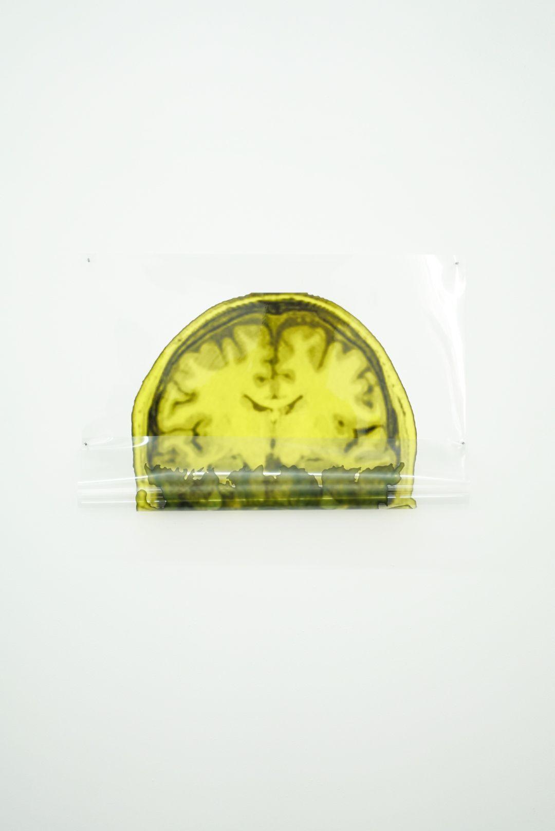 MICHAEL VICKERS | ARTIST PORTRAIT 5 (MRI/MEG)| ARCHIVAL PIGMENT PRINT ON CLEAR MYLAR | 13 X 17 INCHES| 2017