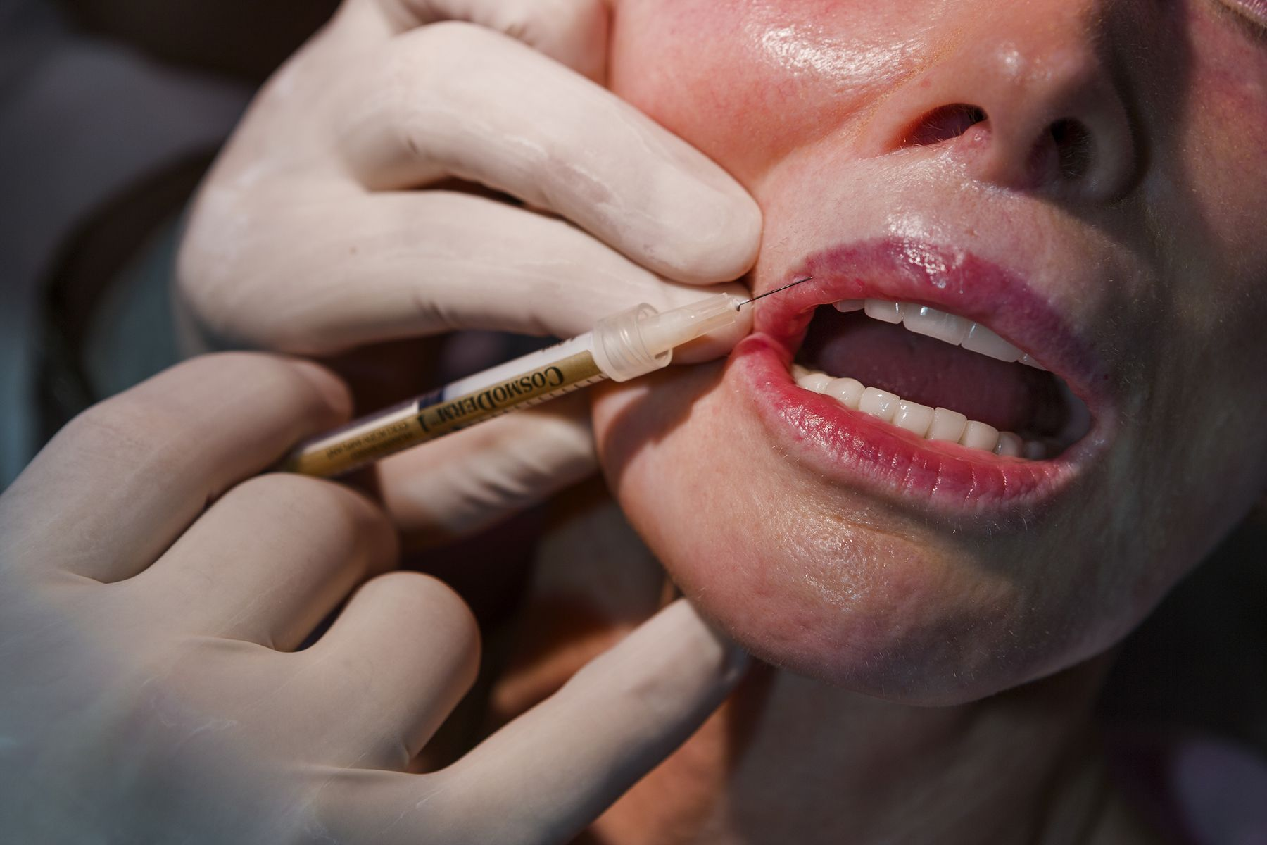 """Jackie Goldberg, 72, also known as """"The Pink Lady"""", gets collagen injections as part of her preparation for the Ms. Senior California beauty pageant, Beverly Hills, California, 2006, Combined Edition of 25"""