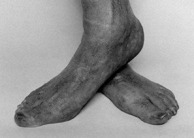 Self Portrait (Feet Crossed)