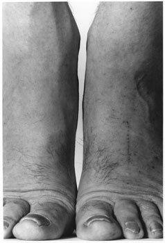 Self-Portrait (Feet Frontal)