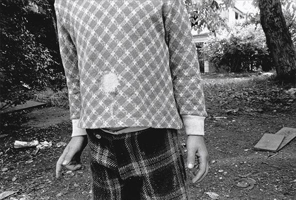 Hole in Shirt, 1974, 16 x 20 inch gelatin silver print