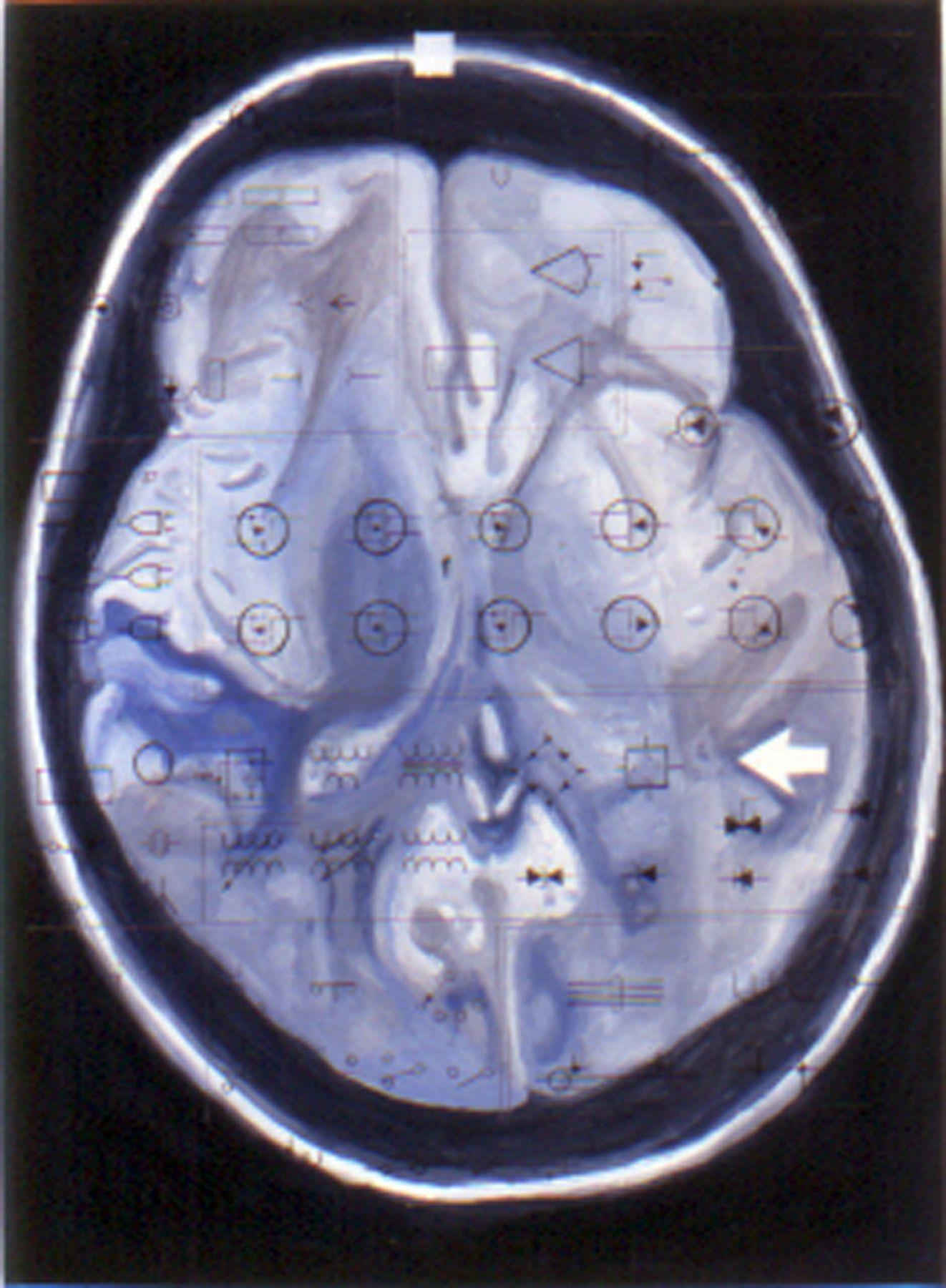 TONY OURSLER, Blue Brain, 2000