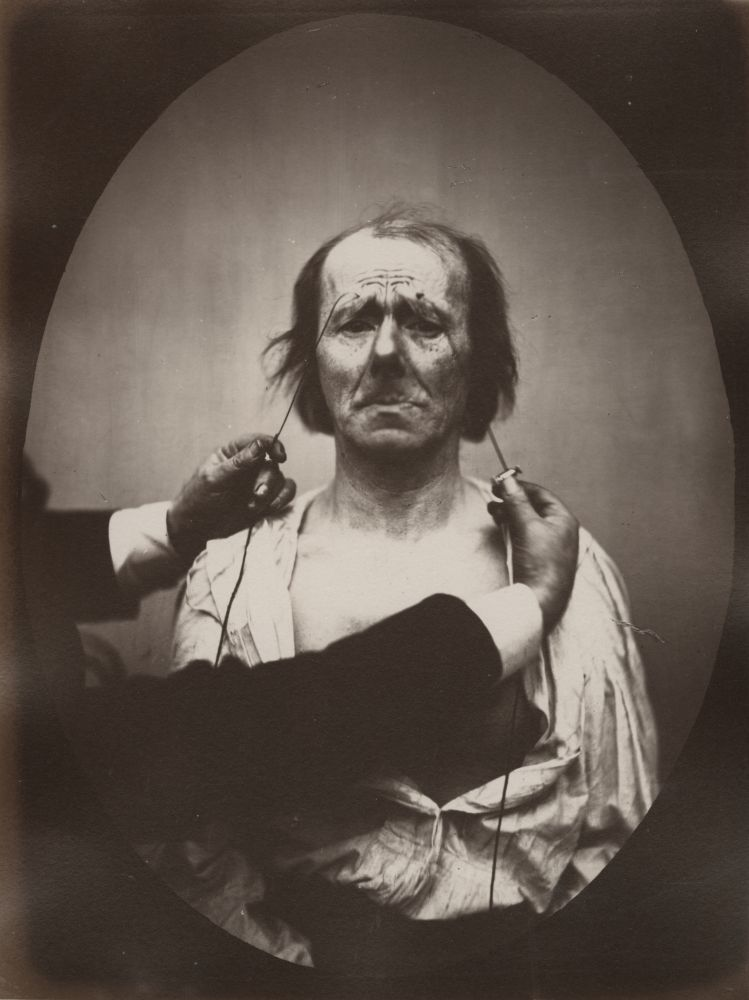 """DUCHENNE DE BOULOGNE and Adrien TOURNACHON (French, 1806-1875 & 1825-1903) Profound suffering, with resignation, , 1862, negative, circa 1856 Albumen print from a glass negative 22.4 x 16.6 cm oval on 22.7 x 17.2 cm paper, mounted on 41.0 x 27.5 cm paper """"20"""" in pencil on mount. """"Fig 20"""" in pencil on mount verso."""