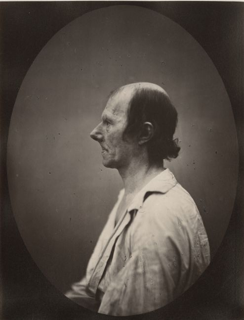 DUCHENNE DE BOULOGNE and Adrien TOURNACHON (French, 1806-1875 & 1825-1903) Portrait of the old man in profile*, 1862, negative, circa 1856 Albumen print from a glass negative 22.1 x 16.5 cm oval on 22.8 x 17.5 cm paper, mounted on 41.0 x 27.3 cm paper