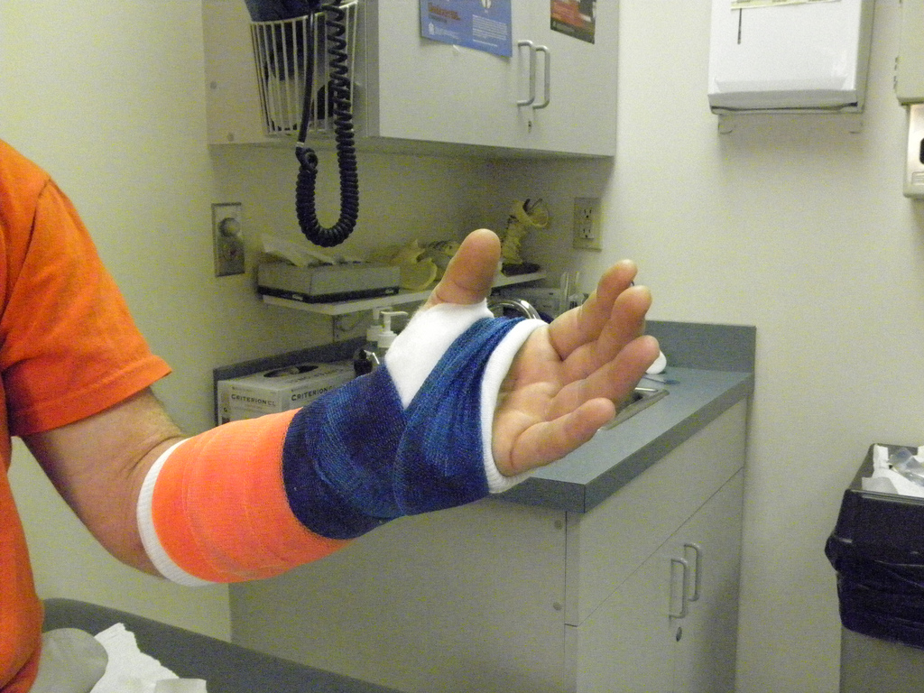 arm in a cast