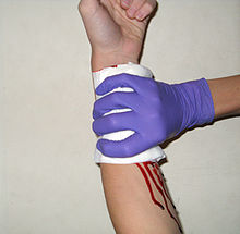 wrapping a bleeding arm