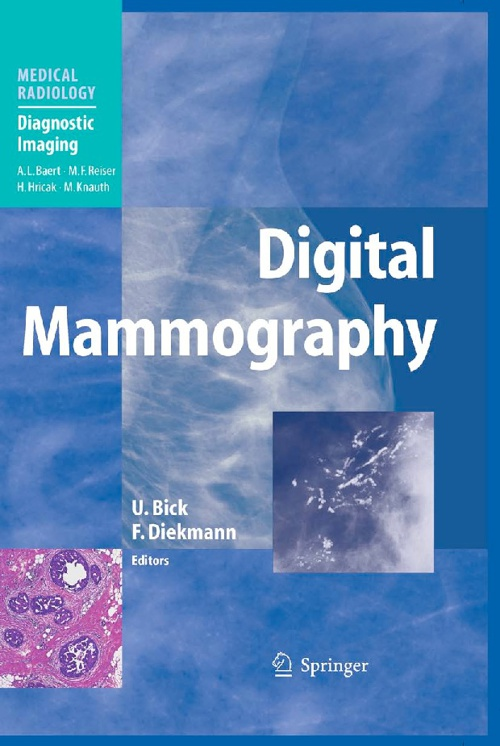 Digital mammograpy