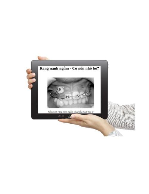 Răng nanh ngầm - Có nên nhổ bỏ?