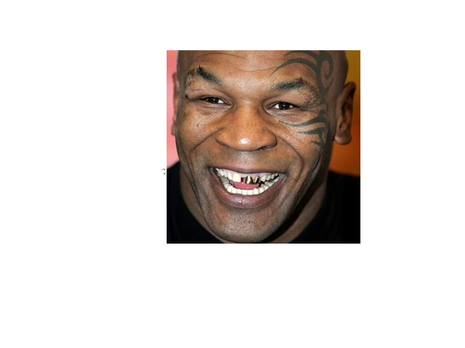 Tyson Fade