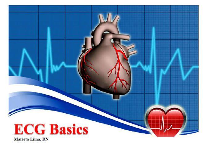 My ECG presentation