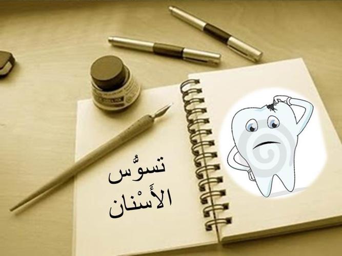 تسوُّس الأسنان