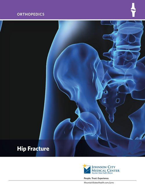 Hip Fracture Patient Education