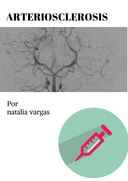 arterioclerosis