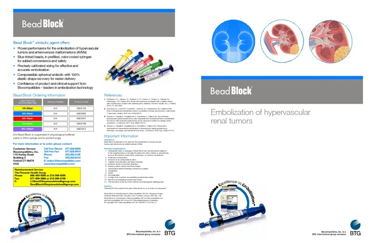 Copy of Bead Block - Embolization of hypervascular renal tumors
