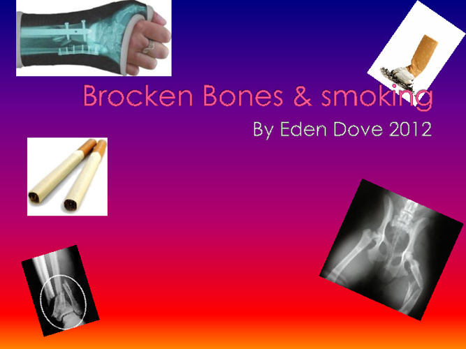 Brokenbones and smoking