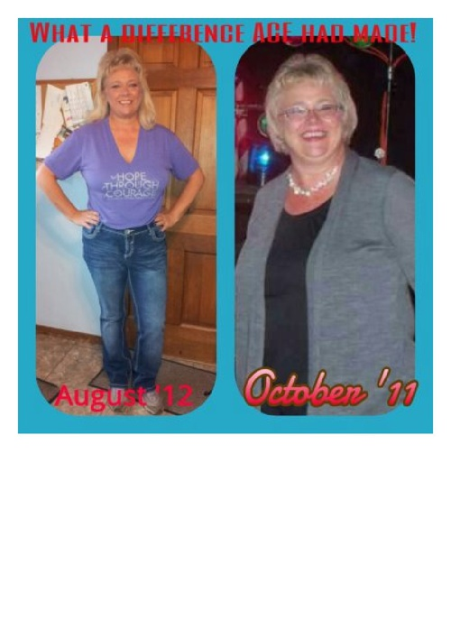 ACE Before & Afters 2