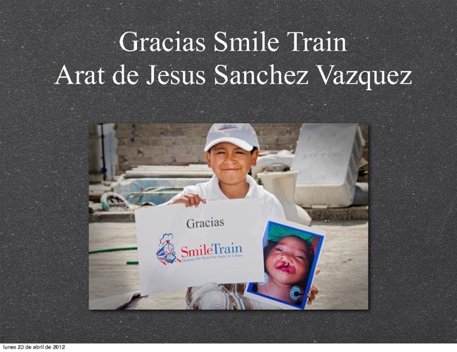 Grascias Smile Train