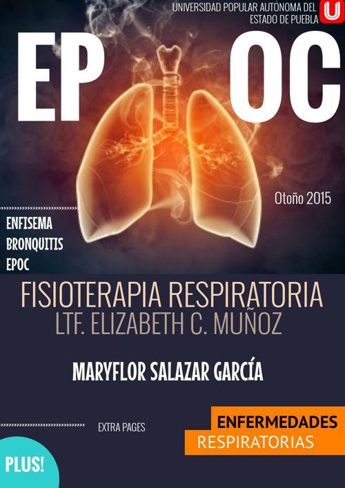 EPOC-MFSG