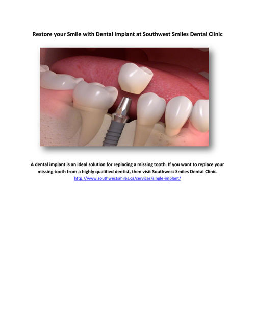 Restore your Smile with Dental Implant at Southwest Smiles