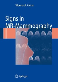 Signs in MRI mammography