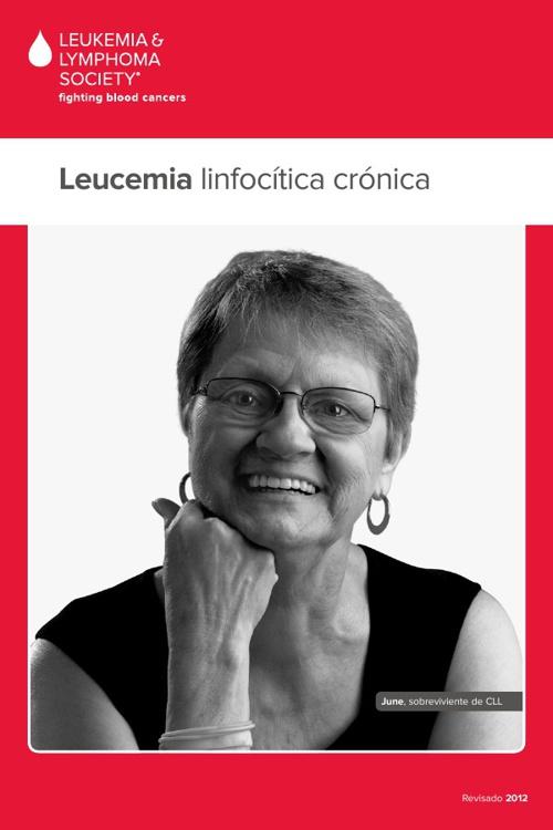 18 SP Chronic Lymphocytic Leukemia