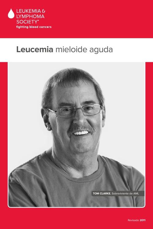 04 sp Acute Myeloid Leukemia