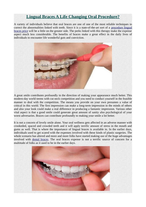 Lingual Braces A Life Changing Oral Procedure