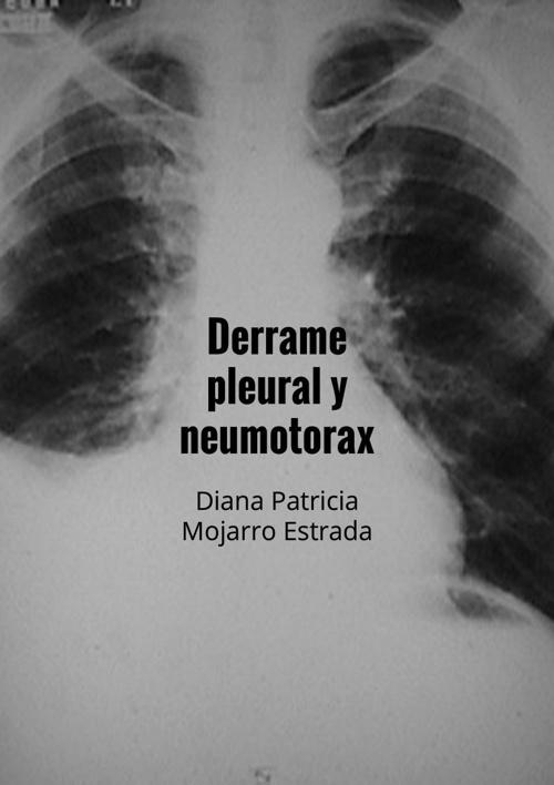 Libro de neumotorax y derrame pleural