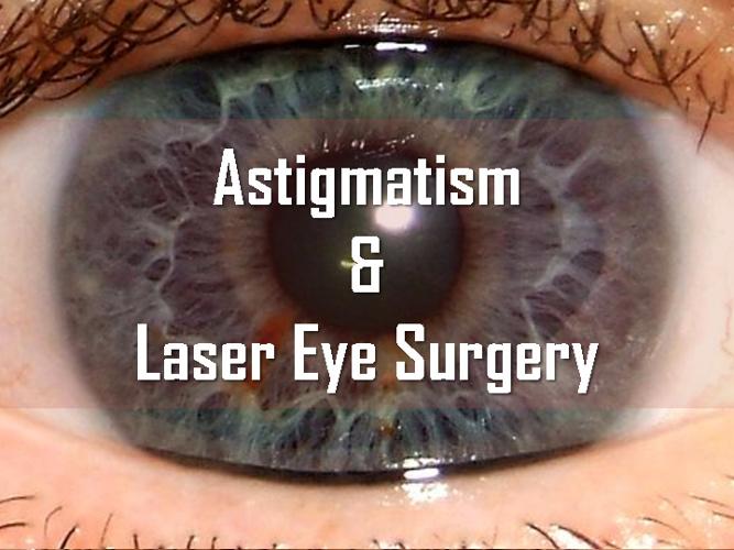 Astigmatism and Laser Eye Surgery