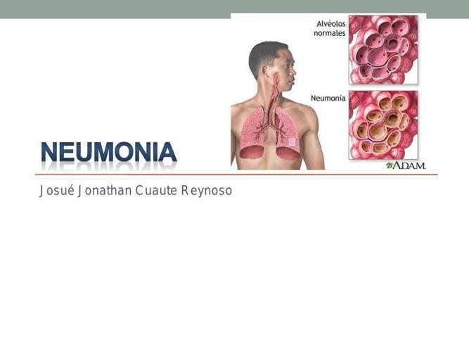 neumonia-cuautle