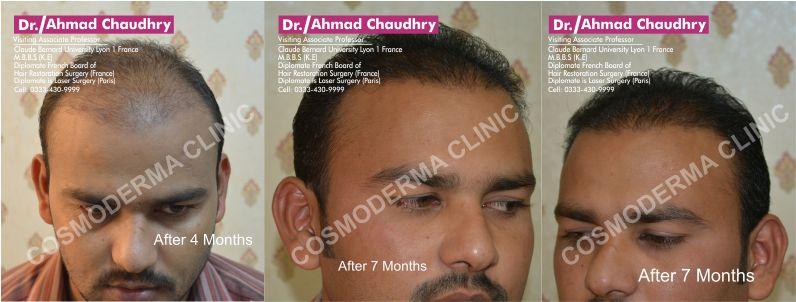Copy of Fue-hair-transplant-in-Pakistan