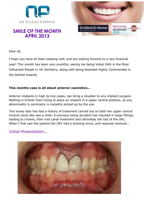 Smile of the Month April 2013