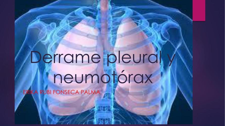 Derrame pleural y neumotórax